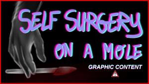 Self-surgery on a mole